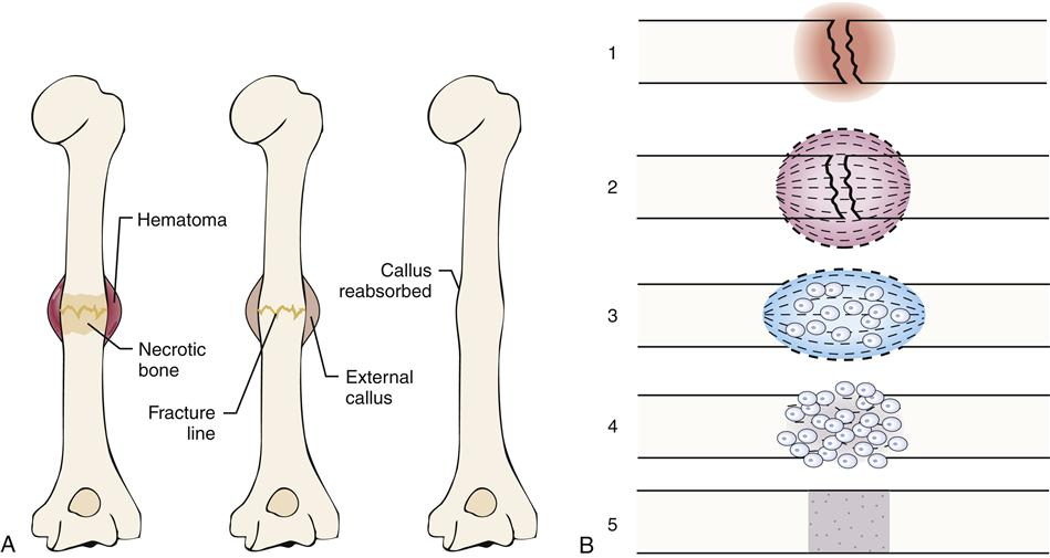 stages of bone formation pdf