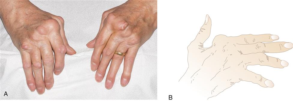 rheumatoid arthritis evolve case study answers Rheumatoid arthritis (ra) affects over 15 million adults rheumatoid arthritis (ra) is an autoimmune condition that occurs when the body begins attacking the joints, mistaking them as foreign invaders additionally, studies using identical twins found that genetics only account for 25% and.