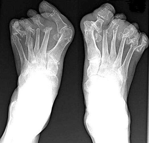 gout relief uk uric acid causes joint pain gout remedies cherry juice