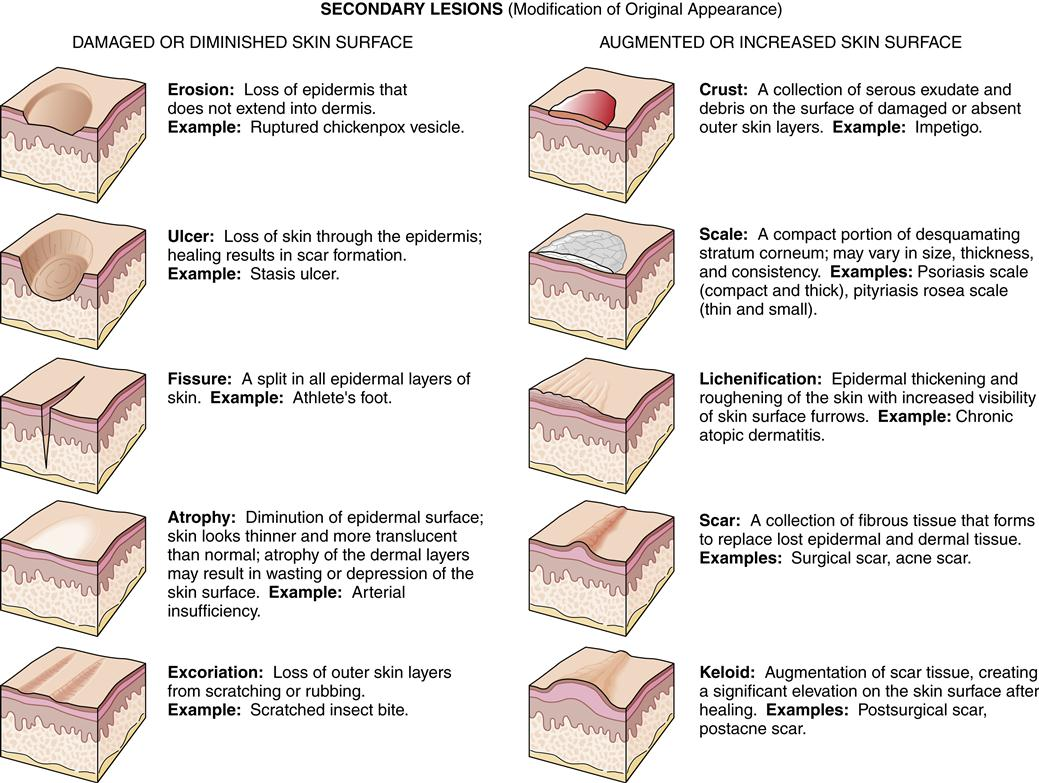 Alterations In The Integumentary System Basicmedical Key