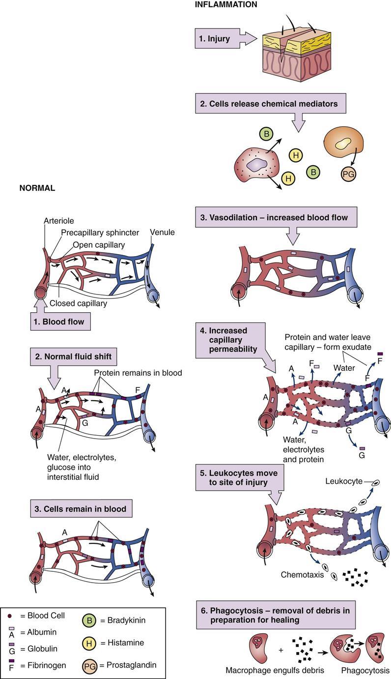 Inflammation And Healing Basicmedical Key
