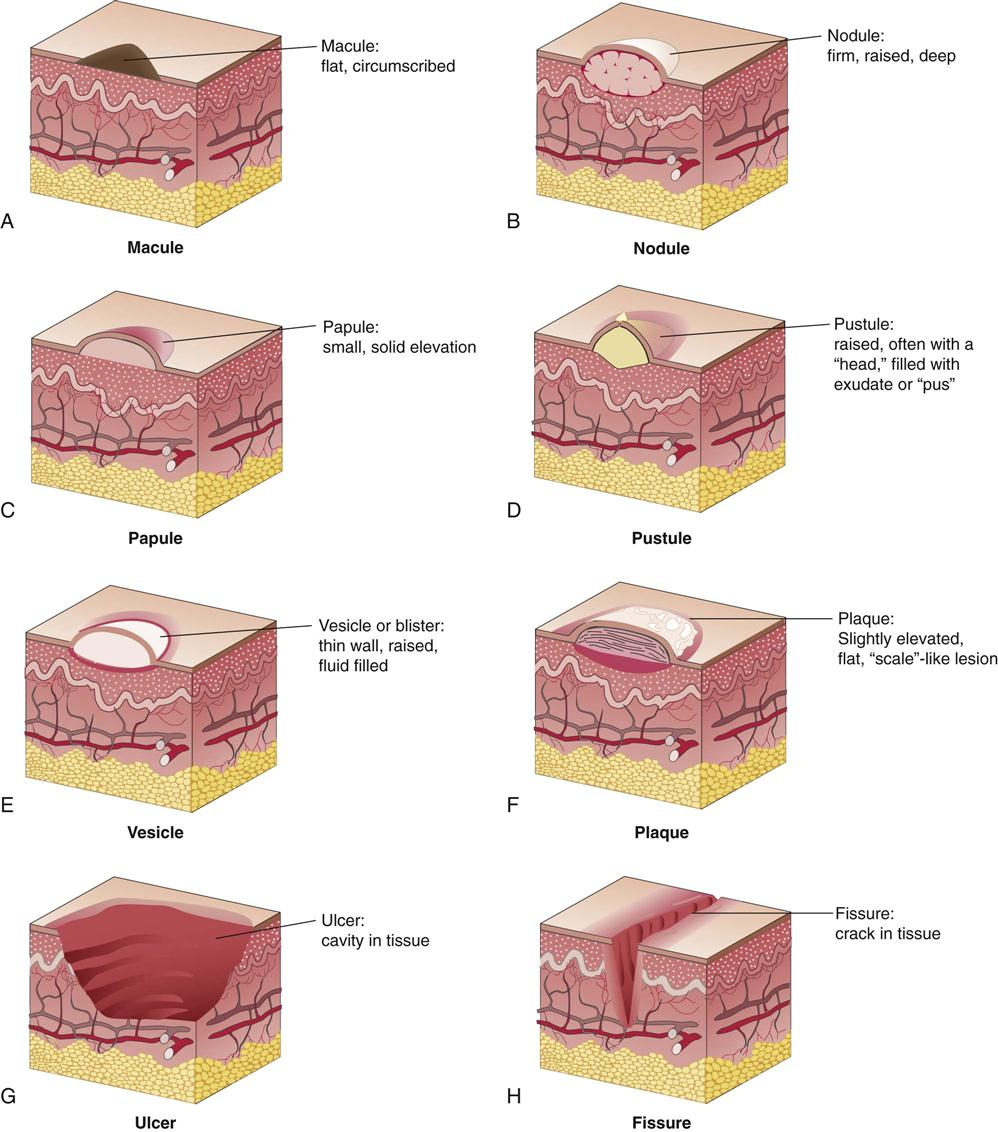 skin lesion diagram