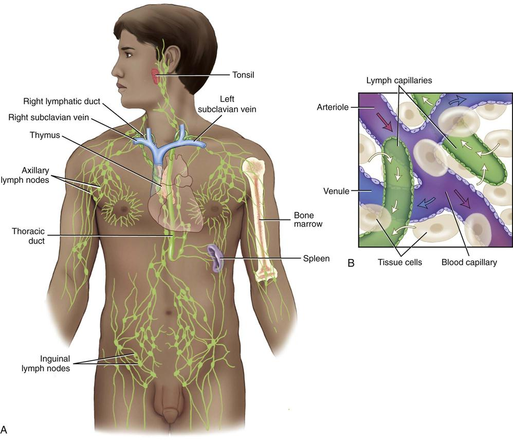 lymphatic disorders Lymphatic disease is a class of disorders which directly affect the components of  the lymphatic system examples include castleman's disease and lymphedema.