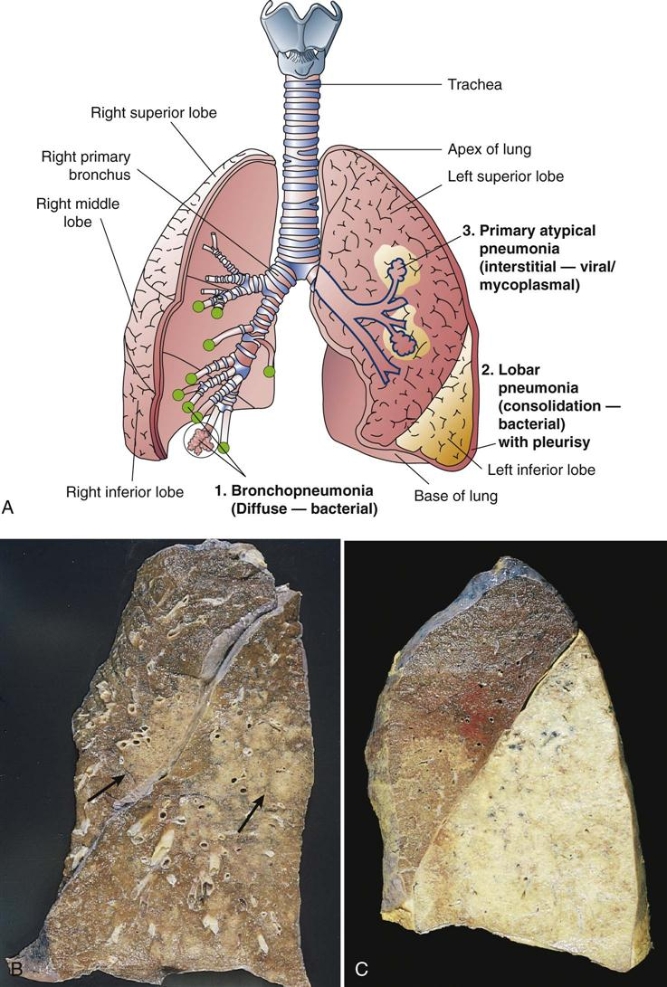 disorders of the respiratory system The respiratory system is composed of the trachea (windpipe), a set of lungs and its blood vessels and bronchioles (smaller airways) sometimes, an.