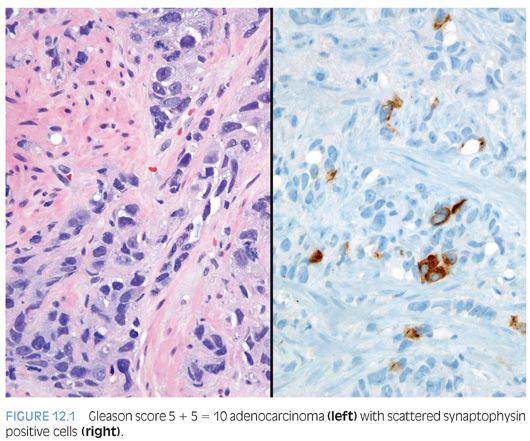 adenocarcinoma acinar usual de prostata gleason 7