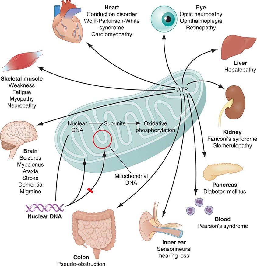 types of mitochondrial diseases What are the treatments currently there are no highly effective mitochondrial disease treatments though related symptoms, such as seizures or attention problems can be managed with various.