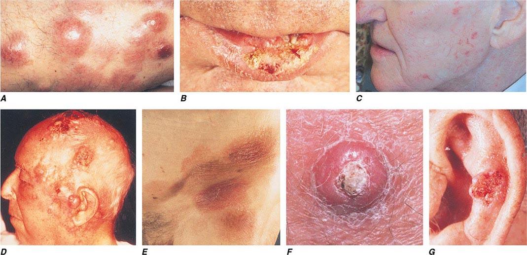 papules lymphoma - photo #46