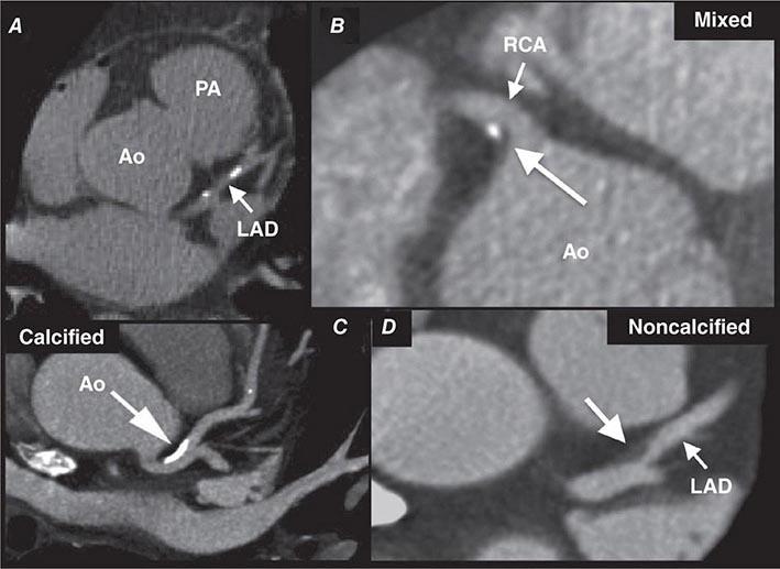 Diagnostic Cardiac Catheterization and Coronary Angiography ...