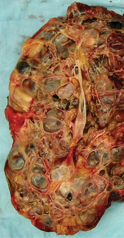 Vascular Injury To The Kidney