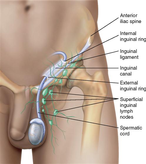 4 Repair Of Hernias Basicmedical Key