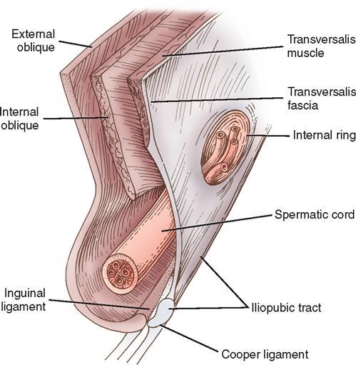4 Repair Of Hernias Basicmedical Key