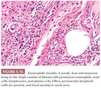 Soft Tissues Basicmedical Key