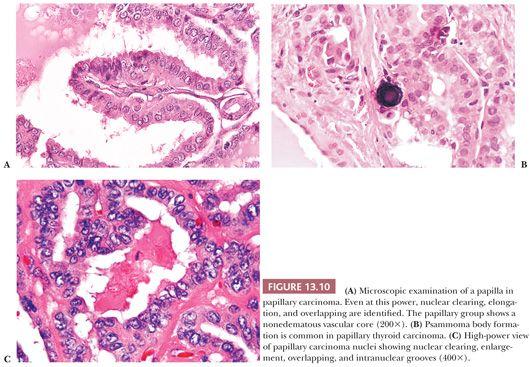 Riedel stroma thyroid
