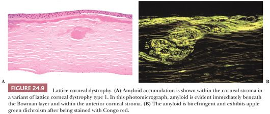 corneas in the congo (congo red), and phospholipids (luxol fast blue) in this case of primary spheroidal degeneration associated with subepithelial corneal amyloidosis, the histological and histochemical properties of the droplet material were.