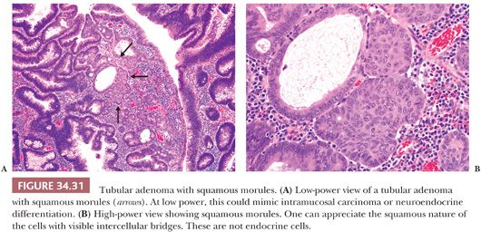 Intestinal Neoplasms Basicmedical Key
