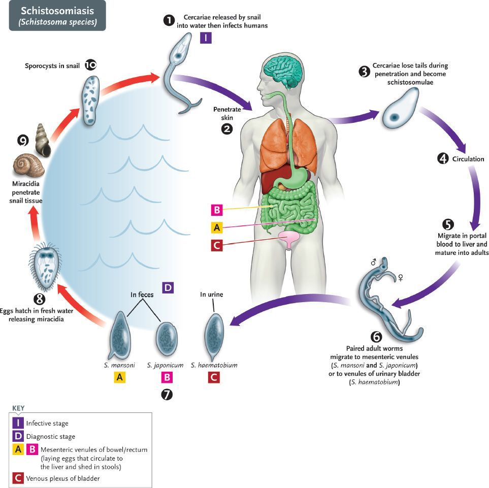 Laryngeal papillomatosis usmle - Schistosomiasis usmle