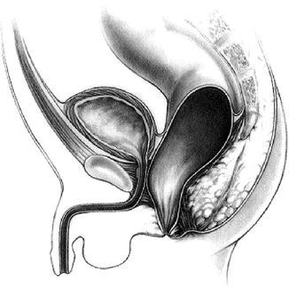 Anal dilation following imperforate anus repair