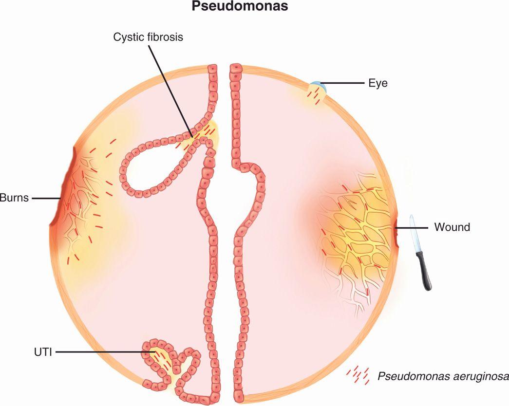 Gram Negative Bacilli In Stool Escherichia Coli Morphology