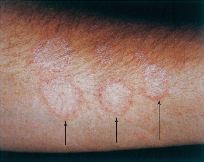 45 Dermatophytes, Sporothrix, and Other Superficial and ...