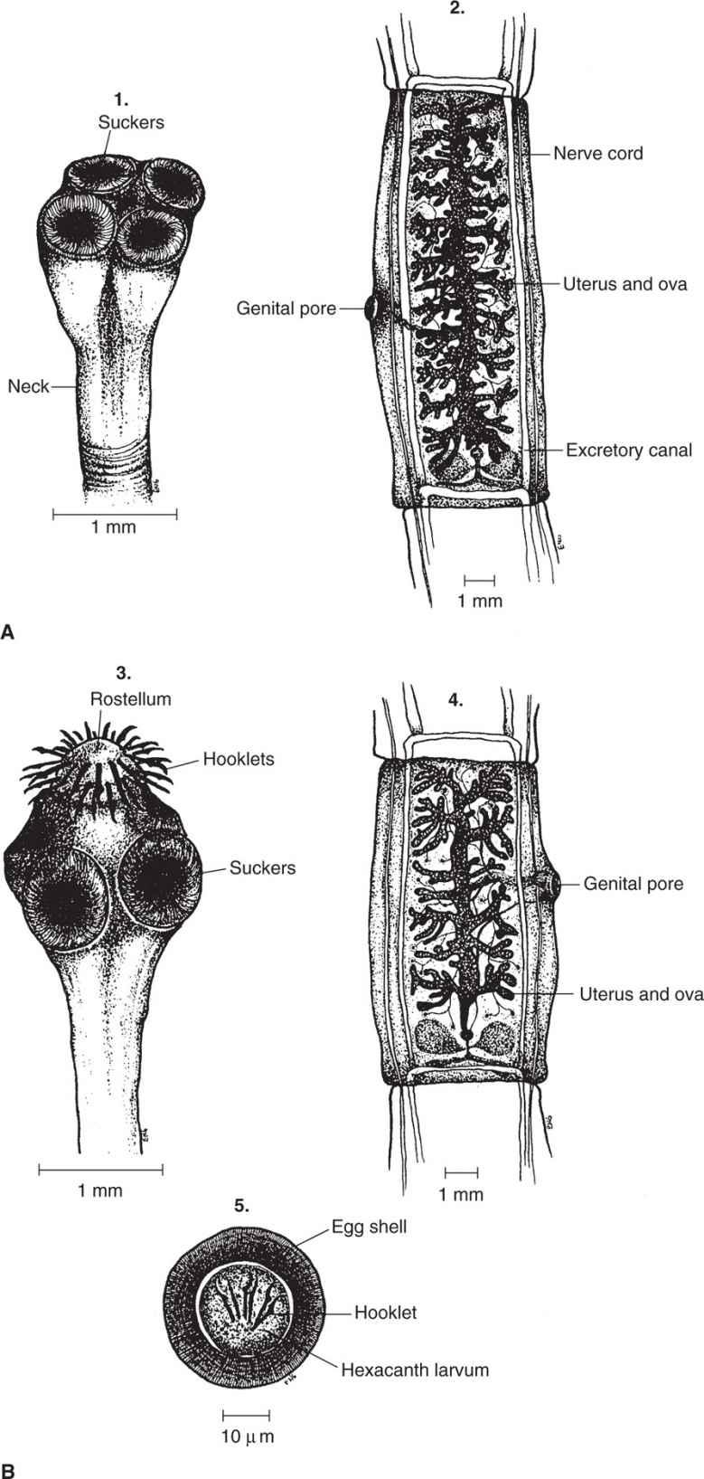 56 cestodes basicmedical key tapeworm structures a taenia saginata b taenia solium 1 3 scolices 2 4 gravid proglottids 5 ova indistinguishable between species pooptronica