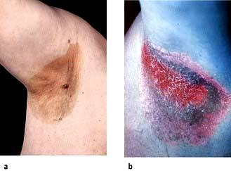 Skin disease | Basicmedical Key