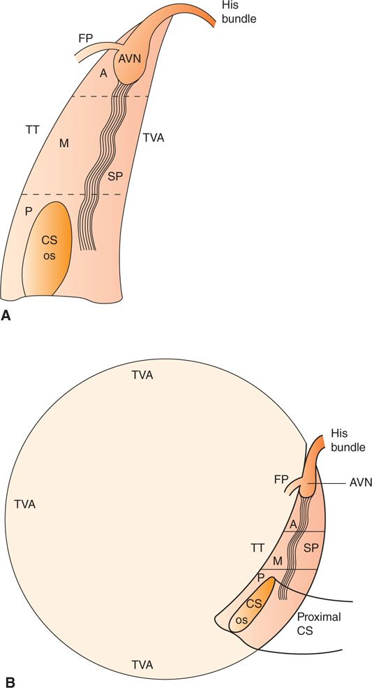 Typical Atrioventricular Nodal Reentrant Tachycardia Basicmedical Key
