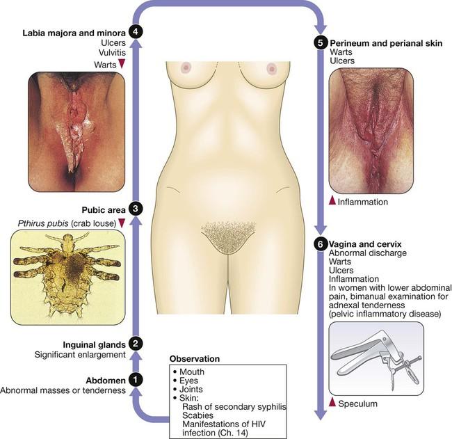 Urethral tubes and bdsm