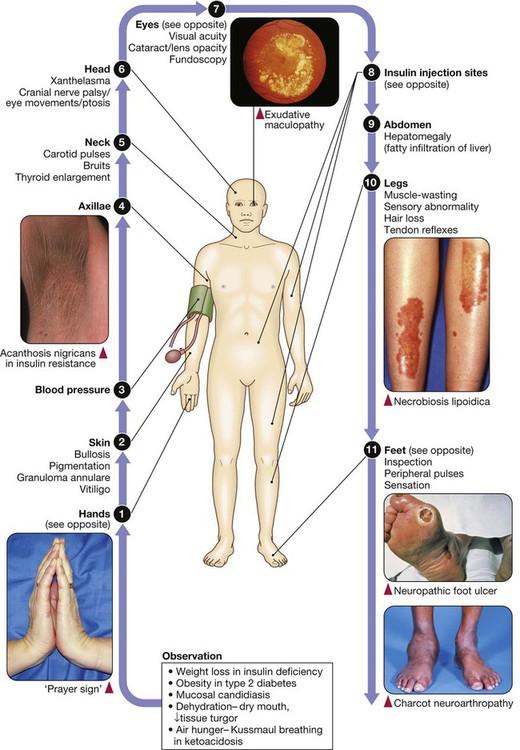 Diabetes mellitus | Basicmedical Key