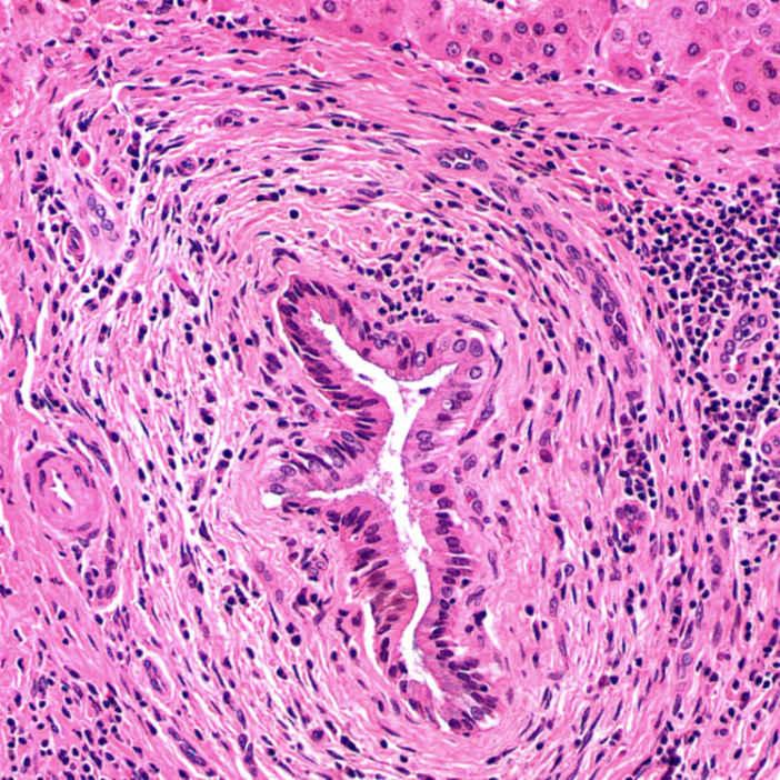 Primary Sclerosing Cholangitis | Basicmedical Key