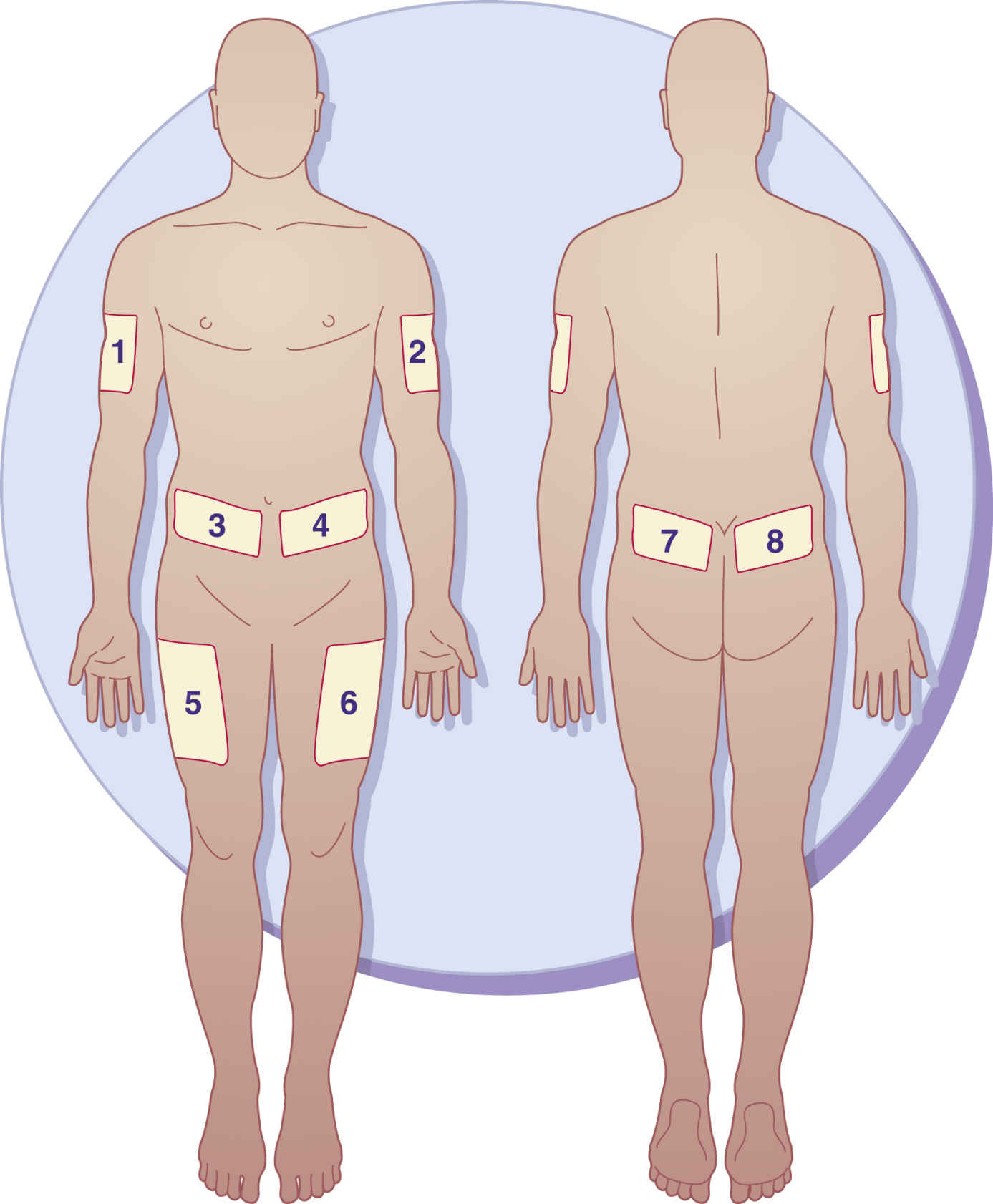 Buttock Injection Site: Basicmedical Key